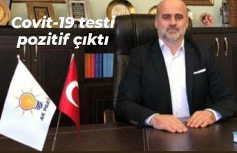 Gürkan Akyol'un Covit-19 testi pozitif çıktı